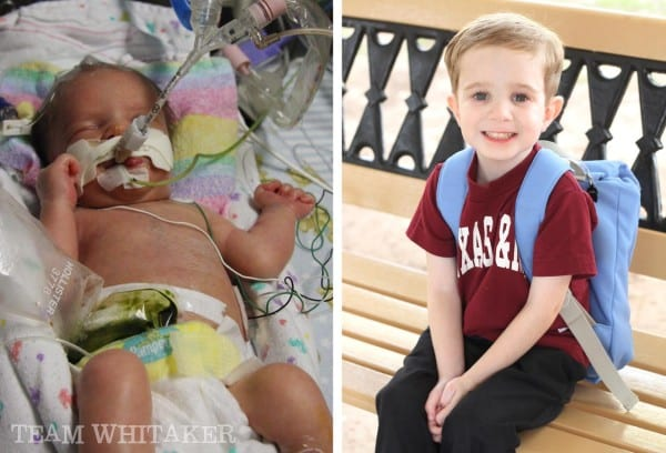 Six moms share their greatest lessons of prematurity, how it shaped them and how they overcome the struggle.