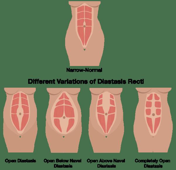 dr-chart